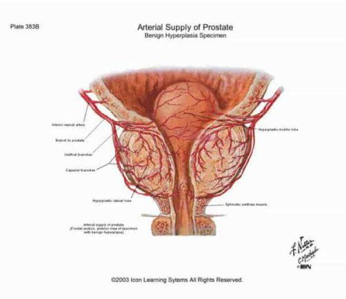 Prostate Hyperplasia Assembly nem krónikus prosztatitis kezelése